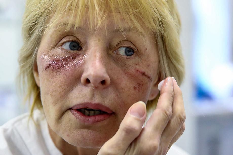 Лицо врача после дежурства в «красной зоне». Раны на лицах уже не успевают заживать. Почему эти люди были вынуждены унижаться и просить то, что они по праву заслужили?
