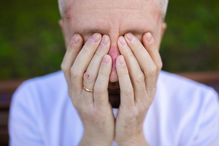 Олег работает в «красной зоне» по шесть часов, потому что инфекционистов не хватает. Раны и гематомы на его лице от постоянного ношения маски и респиратора уже не заживают.